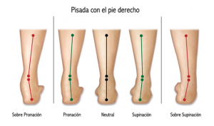 Pie-pronador-supinador-o-neutro-1